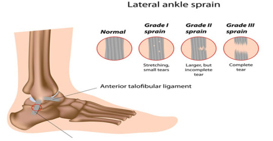 Physio-4 Therapies for Sprain